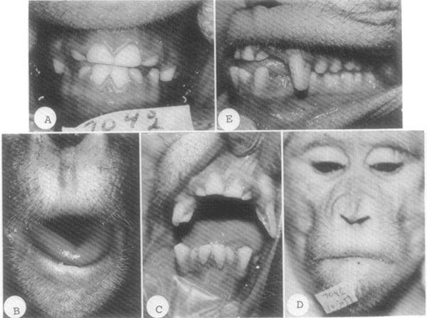 monos respirando boca